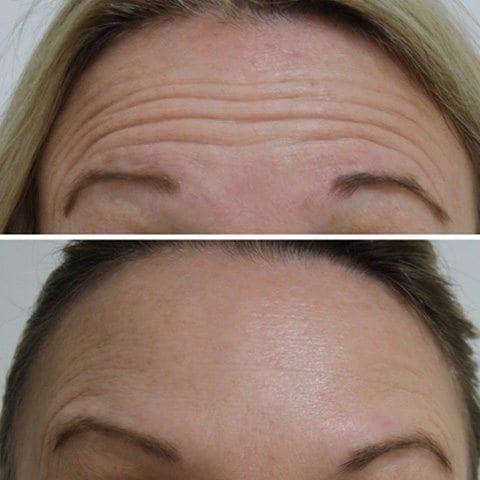 Botox Example 02
