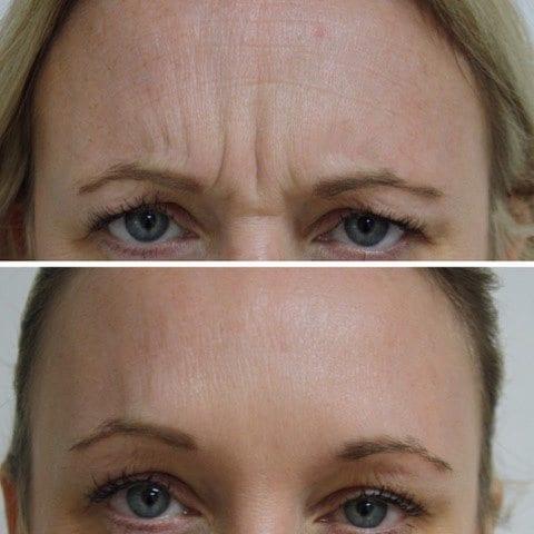 Botox Example 01