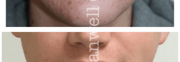 Acne and congestion