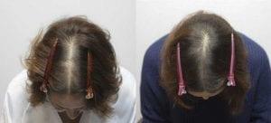 Female Kerastem before and after