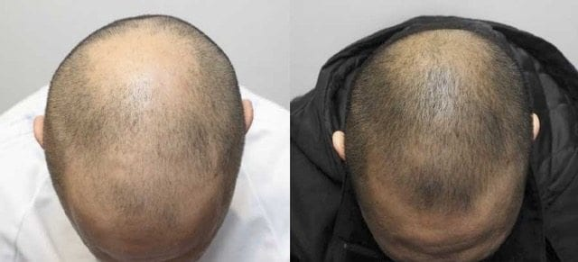 Kerastem Technology Treatment For Hair Loss The Banwell Clinic