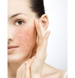 Is your skin sensitive or sensitized?